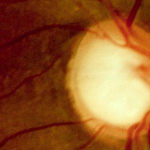 Glaucoma o que é, causas, sintomas e tratamento