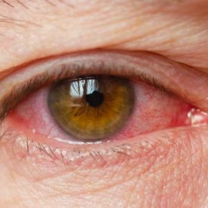 Alergia nos olhos diagnóstico e tratamentos