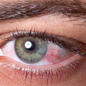Olhos vermelhos causas e tratamentos