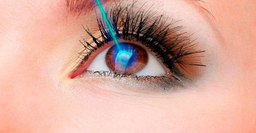 Cirurgia de miopia: O guia definitivo