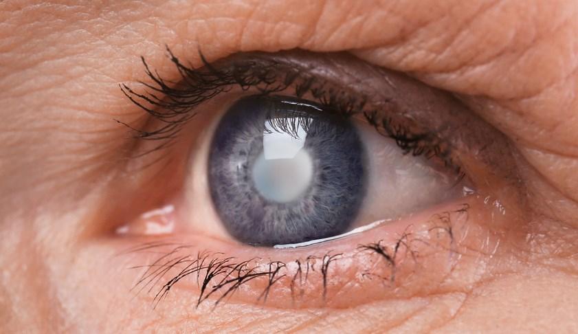 Cataratas nos olhos: Conheça os primeiros sinais de alarme