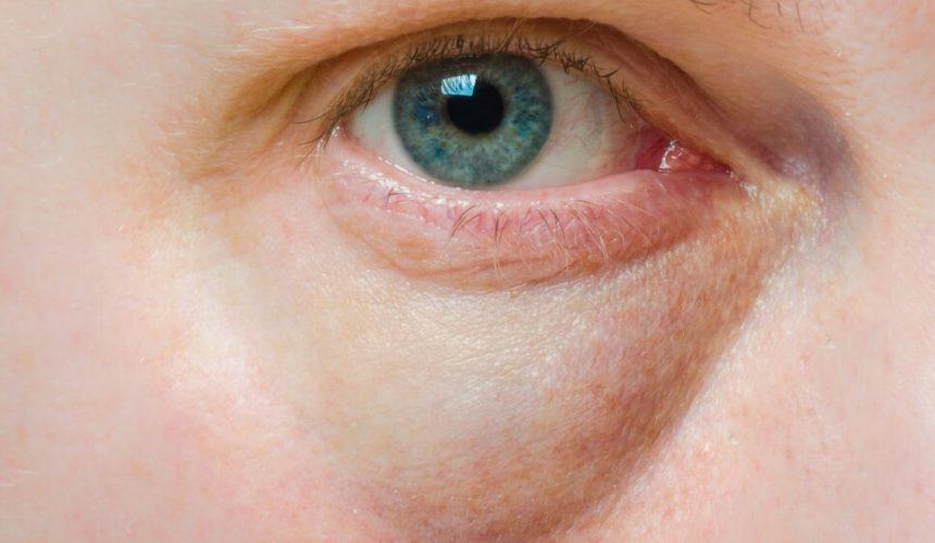 Olhos Inchados potenciais causas
