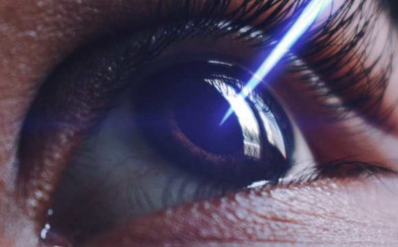 Cirurgia aos olhos Lasik: impactos e marcos históricos na oftalmologia
