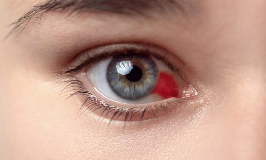 Derrames nos olhos evitável: um alerta sobre os riscos e medidas de prevenção